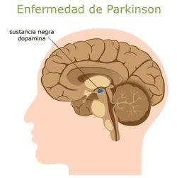 El sistema nervioso afectado por la enfermedad de Parkinson