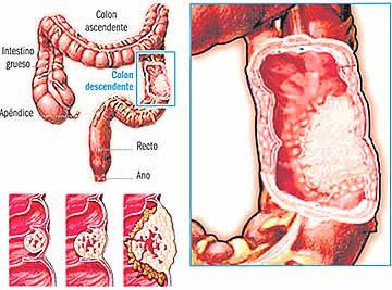 Generalidades-de-la-presencia-de-un-cancer-de-intestino