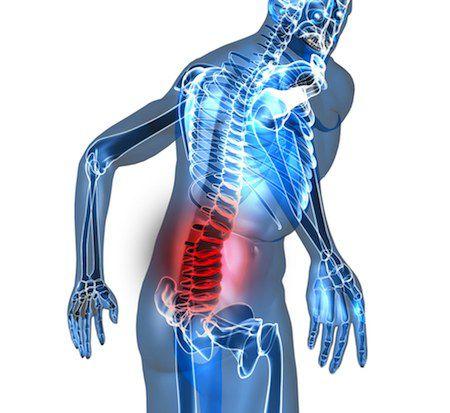 Mantener a raya el dolor de espalda