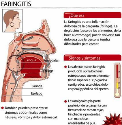 a-faringitis