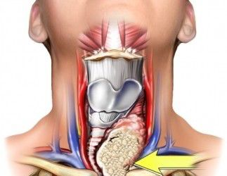 Diferentes formas de presentarse un cáncer de tiroides