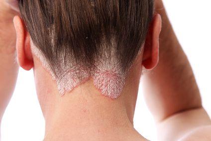 Descamación de la piel producida por una psoriasis