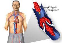 Consejos-para-prevenir-coagulos-sanguineos