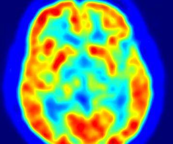 Estudio-sobre-la-actividad-cerebral-en-los-mediums