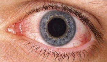 Los-sintomas-de-ojo-seco-son-comunes-tras-cirugia-cosmetica