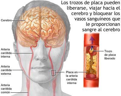 Angioplastias-cerebrales-para-algunos-pacientes-con-accidente-cerebrovascular