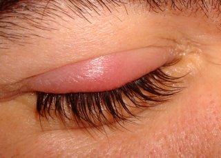 El orzuelo, una infección molesta en el párpado del ojo