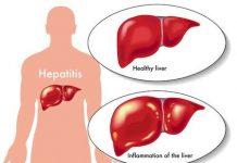 Alimentacion-para-personas-que-sufrieron-de-hepatitis-1