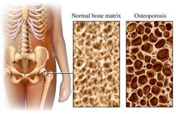 Consejos-para-controlar-la-osteopenia-y-el-desarrollo-de-osteoporosis