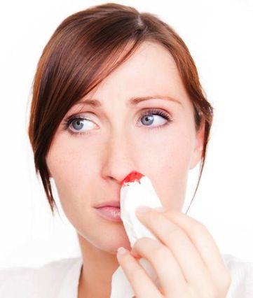 Remedios-caseros-para-tratar-hemorragias-nasales-leves