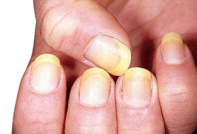 El-color-y-forma-de-las-unas-ayudan-a-diagnosticar-ciertas-enfermedades