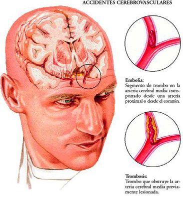 emboliacerebral