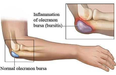 Como tratar la bursitis