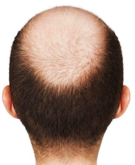 alopeciahombres