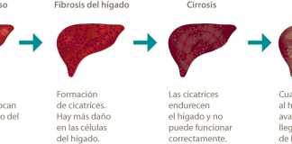 cancerhigado-1