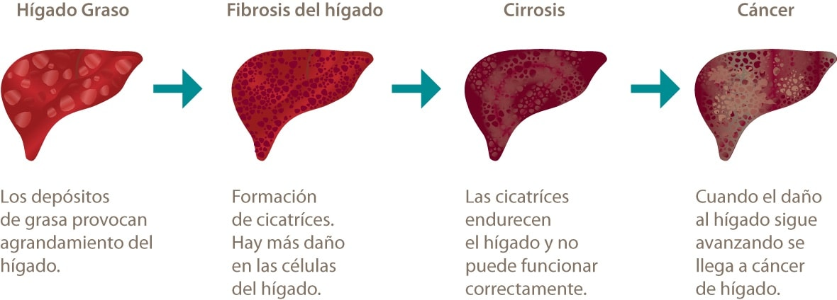 Prevención de cancer de higado | Blog de farmacia