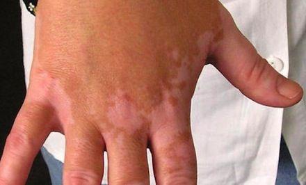 vitiligoalimnetos