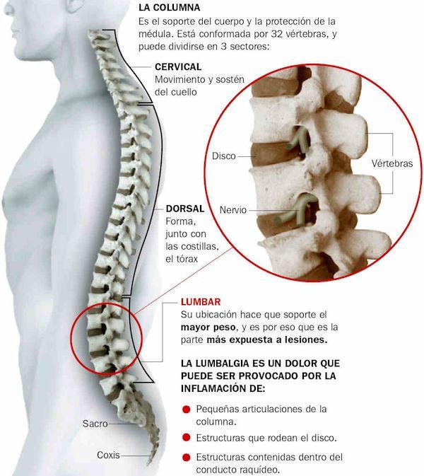 Podtyagivanie a la hernia sheynogo del departamento de la columna vertebral
