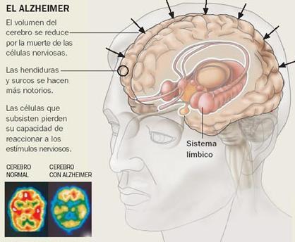 enfermedad-de-Alzheimer