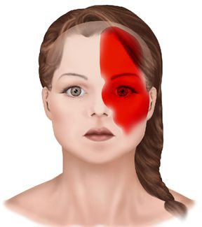how to break a migraine naturally