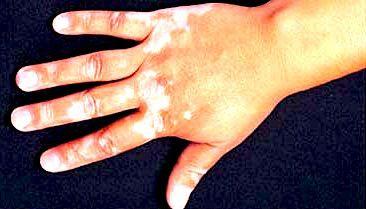 vitiligo1a