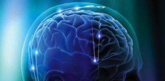 demencia-vascular