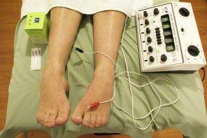 electro-acupuntura-300x200