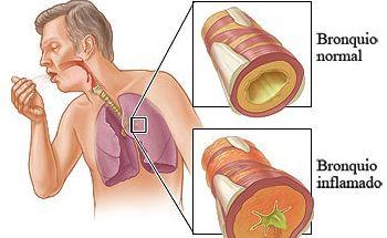 broncoespasmos