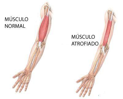 distrofia-muscular