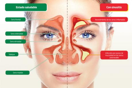Como combatir la sinusitis con remedios naturales