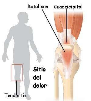 tendinitisrodilla