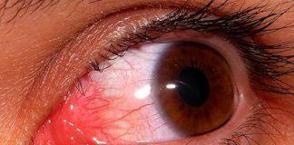 derrame-ocular