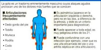 acidourico1