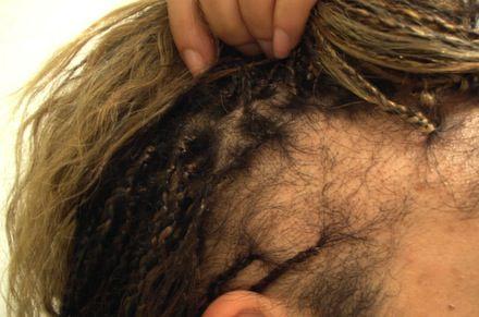 alopeciatraccion