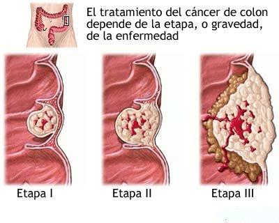 cancercolon