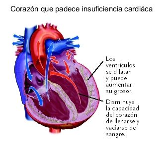 insuficienciacardiaca