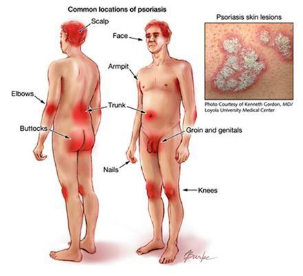 La dermatitis en la eccema