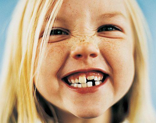 dientesleche