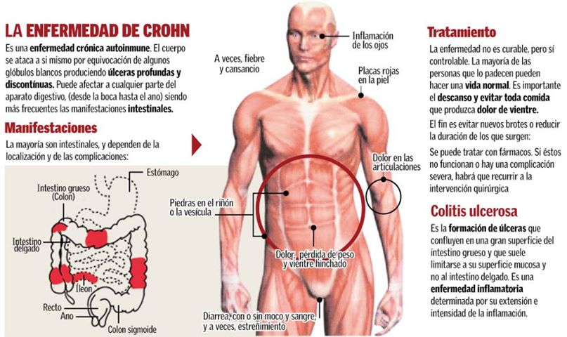 Enfermedad de Crohn: Qué es? Síntomas y