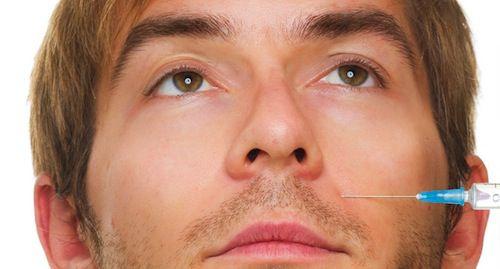 botox-hombre