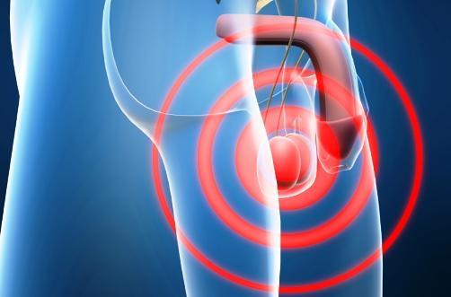 El dolor de testículo por un golpe