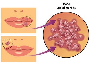 herpeslabios