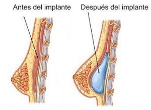 Implantes mamarios y la lactancia