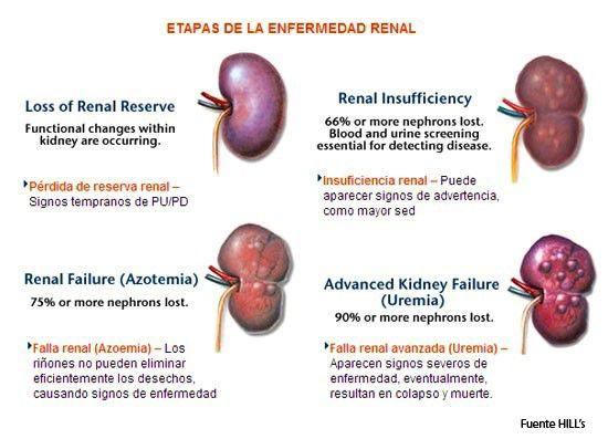 enfermedad rinon