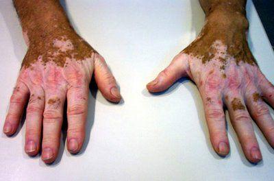 El blanqueamiento de la piel en los lugares íntimos del medio