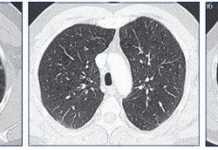enfisema-tomografia