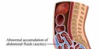 hidropesia