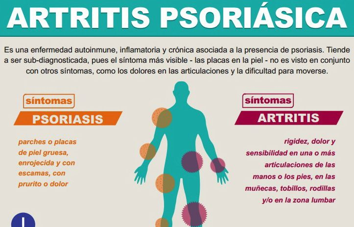 La limpieza del organismo por el carbón activo a la psoriasis