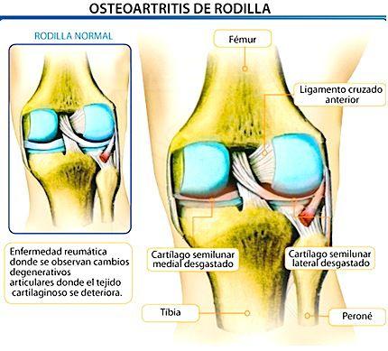 osteoartritis_rodilla