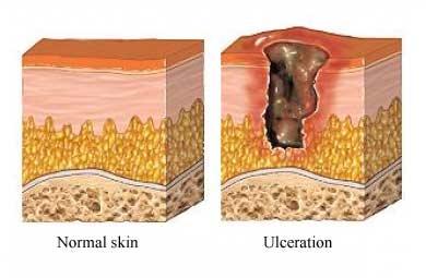 ulceras